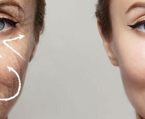 kolajen üretimini collagen